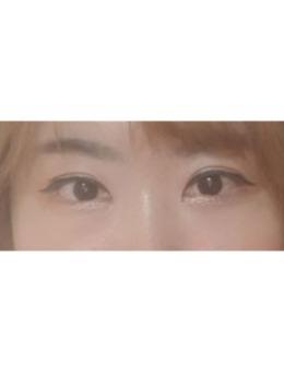 大眼睛整形医院双眼皮+开眼角案例图片