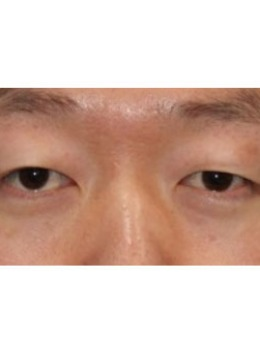 男生小眼睛割双眼皮案例效果曝光!要不要这么赞!