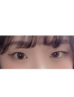 韩国大眼睛医院双眼皮案例照?片_术前