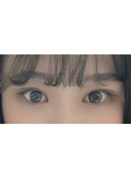 韩国大眼睛医?院双眼皮案例照片_术后