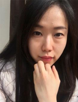 30岁女人有黑?眼圈怎么办?不怕~看韩?国有效去黑眼圈治疗_术前