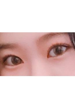小平行双眼皮案例效果对?比图_术后