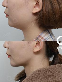 韩国爱她整形医院?做狐狸V脸手术前?后对比效果