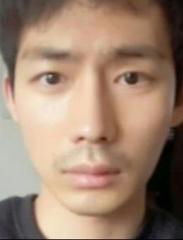 男性隆鼻从1~2个月逐步效果案例对比(附恢复效果图)_术后