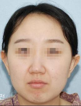 韩国?句号整形V脸手术案?例