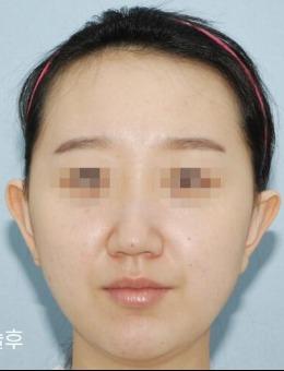 韩国句号整形V脸?手术案例