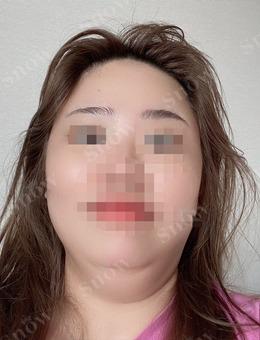 韩国SNOW医院面吸和面填同时做消肿要多久?效果好吗