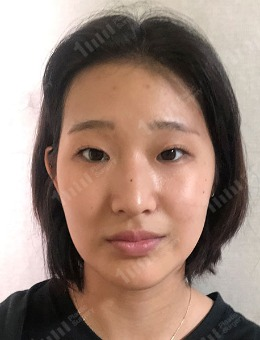 双眼皮+隆鼻手术恢复案例前后对比照片_术前