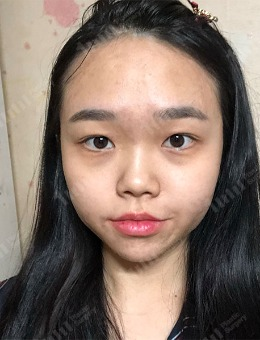 韩国1mm整形外科眼鼻综合整形案例_术前