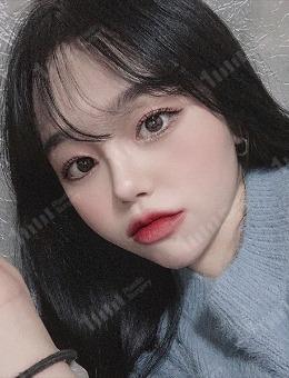 韩国1mm整形外科眼鼻综合整形案例_术后