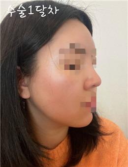 YJ整形外科鼻修复+面部脂肪填充术后1个月真人案例图_术后
