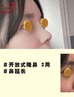 短鼻延长术对比照片曝光,开放式隆鼻看不到疤痕_术后