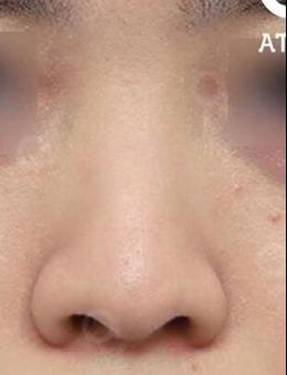 韩国爱她整形医院自然款隆鼻前后对比案例!_术前