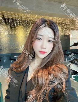 韩国芙莱思全脸面部填充案例曝光!10000元起超美照片值得看