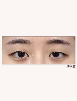 韩国1mm整形医院自然粘连法埋线双眼皮治疗案例_术前