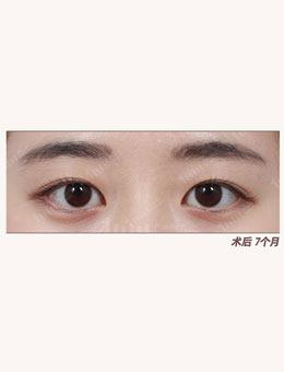 韩国1mm整形医院自然粘连法埋线双眼皮治疗案例_术后