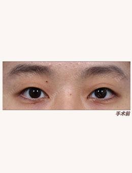 韩国1毫米整形外科自然粘连法埋线双眼皮案例_术前