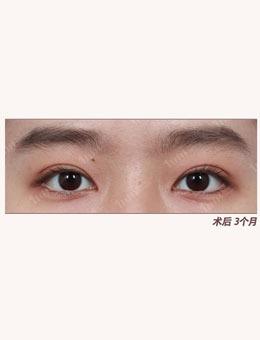 韩国1毫米整形外科自然粘连法埋线双眼皮案例_术后
