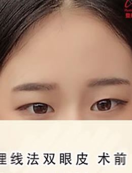 韩国Ucanb埋线双眼皮案例_术前
