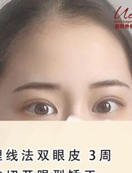 韩国Ucanb埋线双眼皮案例_术后
