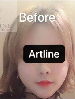 韩国ARTLINE皮肤科整形医院玻尿酸丰唇案例_术前