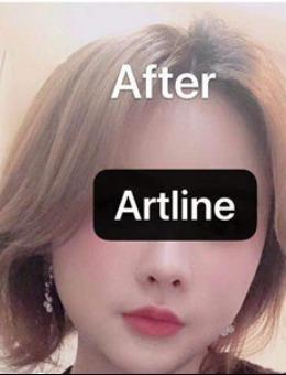 韩国ARTLINE皮肤科整形医院玻尿酸丰唇案例_术后