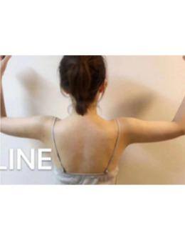 ARTLINE皮肤科整形医院手臂吸脂案例,手臂抽脂经历分享!_术后