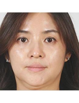 韩国超声刀效果好吗?ARTLINE皮肤科医院超声刀真实案例分享!_术前