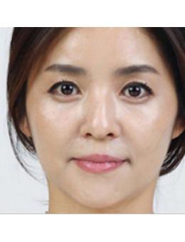 韩国超声刀效果好吗?ARTLINE皮肤科医院超声刀真实案例分享!_术后