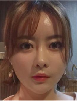 韩国Artline皮肤科整形医院线雕前后对比图,做完埋线后也太好看了吧!