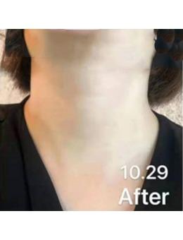 脖子颈纹很深怎么消除?ARTLINE皮肤科医院颈纹去除效果惊艳!_术后