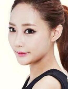 韩国江南DNA整形眼综合(双眼皮+前后眼角+下至)案例图片