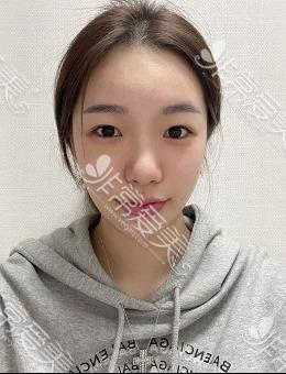 """韩国优雅人""""超甜系""""女模特眼修?复+肋骨鼻照片?曝光,明?明术前就很好看嘛!"""