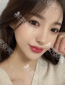 """韩国优雅人""""超甜系""""女模特眼修复+肋骨鼻照片曝光,明明术前就很好?看嘛!"""