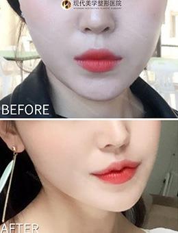 -韩国现代美学M唇+嘴角上扬术案例对比,唇形改善效果看得见!