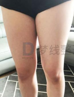 大腿吸脂恢复照片韩国梦线整形医院案例分享!
