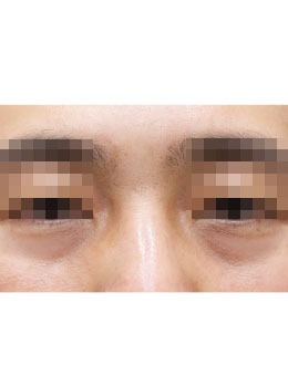 韩国尤美皮肤科去眼袋对比前后效果_术前