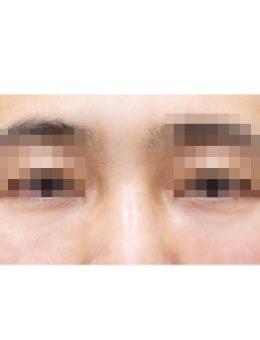 韩国尤美皮肤科去眼袋对比前后效果_术后