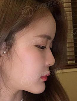 韩国OM整形医院吴珉隆鼻前后对比照片