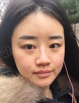韩国OM整形鼻综合恢复过程图