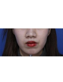 韩国江南Dayone医院V脸提升手术效果对比图_术前
