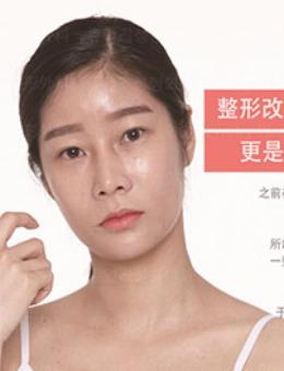 -韩国珠儿丽眼综合+鼻综合+全脸填充下巴吸脂案例图