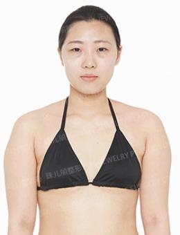 -分享珠儿丽全身综合改善案例,包含身体吸脂+面部综合!
