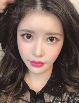 -韩国珠儿丽双眼皮修复+轮廓整形3个月跟踪恢复变化