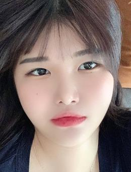 韩国icon内窥镜额头提升三重埋线案例分享_术前