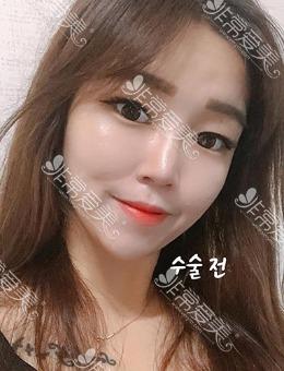 韩国icon整形额头内窥镜提升术+眼睛埋线手术案例_术前