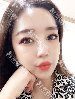 韩国icon整形额头内窥镜提升术+眼睛埋线手术案例_术后