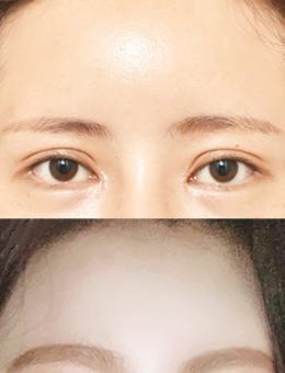 韩国icon内窥镜额头提升手术照片_术前