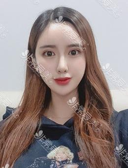 韩国TJ整形眼鼻案例分享:3个月造就韩范网红!