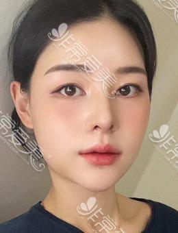 韩国优雅人全肋骨隆鼻初鼻案例分享,包含福鼻矫正+缩鼻翼